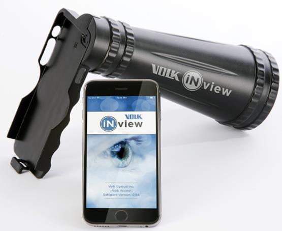 沃爱康iNview实现了视网膜的自动广角彩色眼底成像,兼容苹果设备