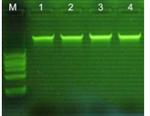 2019-nCoV新型冠状病毒S基因染料法荧光定量RT-PCR试剂盒