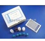 IgG试剂盒,大鼠免疫球蛋白G检测试剂盒