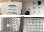 大鼠内皮抑素(ES)elisa试剂盒、大鼠内皮抑素elisa试剂盒