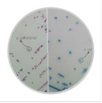 大肠杆菌O157显色培养基(第二代)。