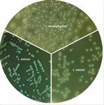 单增李斯特菌显色鉴别琼脂