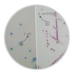 显色培养基大肠杆菌O157选择性(国标首选)