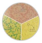 显色培养基月桂基硫酸盐显色琼脂(膜过滤法)