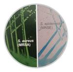 金葡与表葡耐药菌区分显色培养基