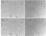 786-O腺癌细胞人肾透明细胞