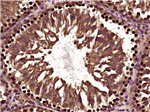 LX2人肝星状细胞