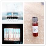 总三碘甲状腺原氨酸(TT3)质控品