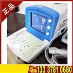 国产B超便携式B超 LCD笔记本全数字超声诊断仪图像清晰可深度转换国产B超