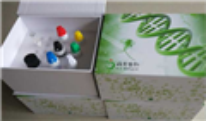 磷酸化NIFK抗体phospho-NIFK(Thr238)免疫组化试剂盒